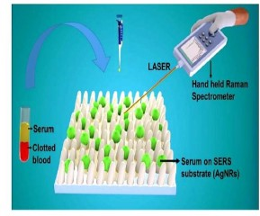 अब एक घंटे में संभव होगी डेंगू- एचआइवी की जांच, IIT Delhi ने विकसित की नई तकनीक